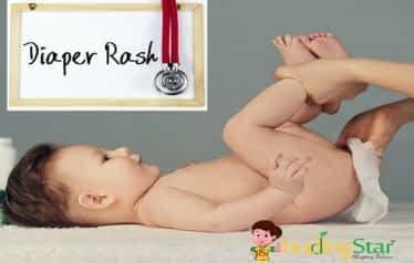 home-remedies-for-diaper-rash